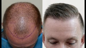 A Few Factors That Influence the Cost of a Hair Transplant Procedure