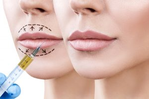 ENHANCING YOUR LIPS WITH JUVEDERM