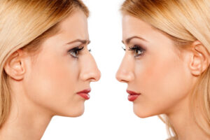 3 Reasons Why People Opt for a Nose Job